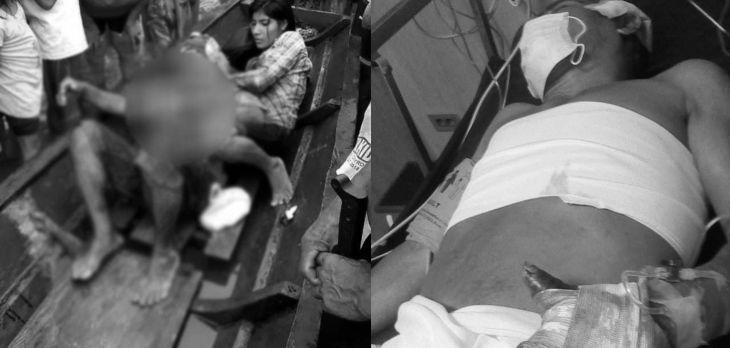 Agricultor que fue atacado de machetazos por su propio vecino por disputa de terrenos, se debate entre la vida y la muerte