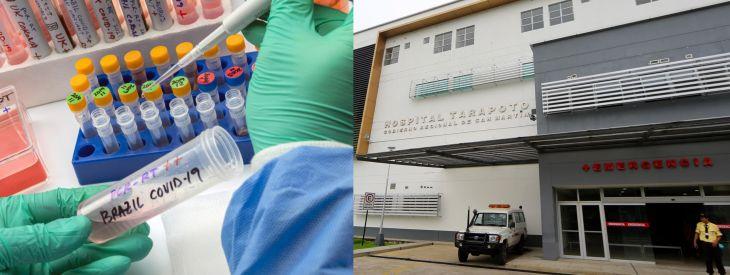 Minsa: Ya existen pacientes internados en hospital Tarapoto con nueva variante de Covid-19