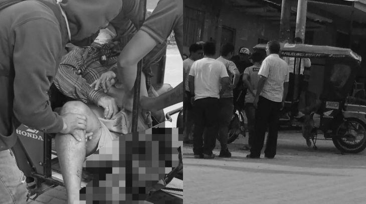Morales: El fin de semana, otra persona resultó mutilada de la pierna izquierda tras accidente ocurrido ayer por la tarde